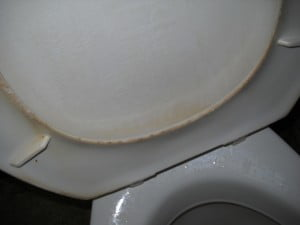 I can only thank God I needed to just poass water, I don't know what I'd do if I had to stool - this is the Guest toilet in A&E, do you see the yello discoloured band on the inside rim of the seat? CLICK ON IMAGE FOR LARGER PHOTO